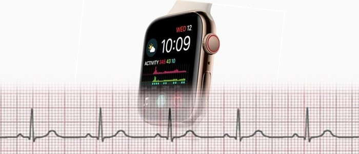 What Is The Apple Watch ECG About?