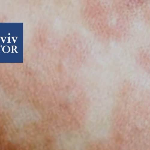 Measles Outbreak in Israel: Medical Facts