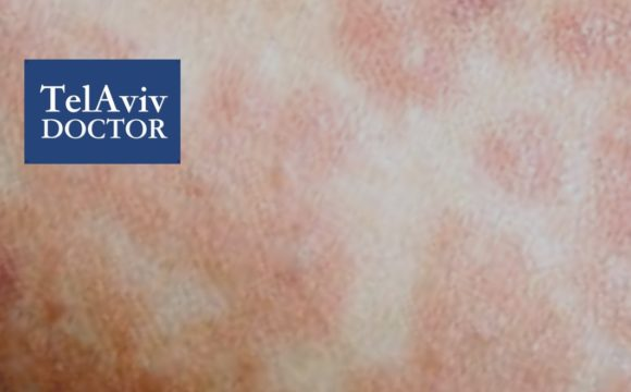 Measles Outbreak In Israel Health Advice | Tel Aviv Doctor