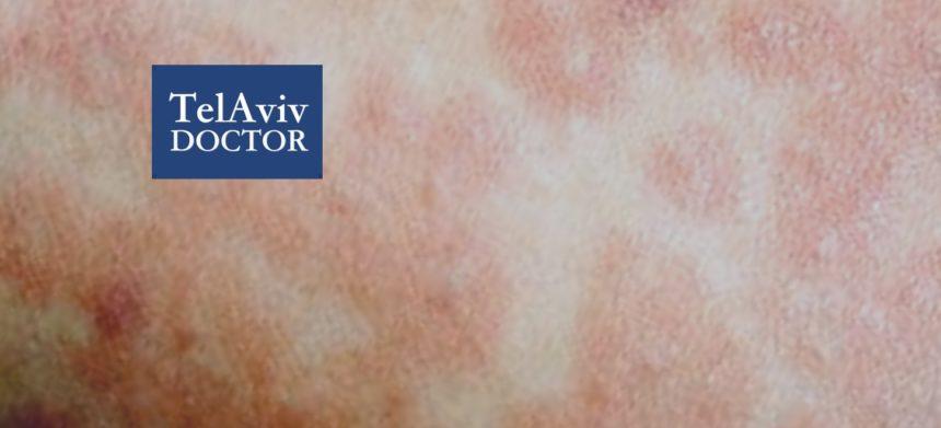 Measles Outbreak In Israel Health Advice | Tel Aviv Doctor